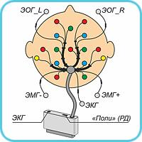Электродная система ЭС-ЭЭГ-13-3