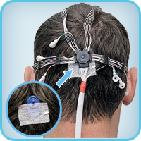 Adhesive cup EEG electrodes