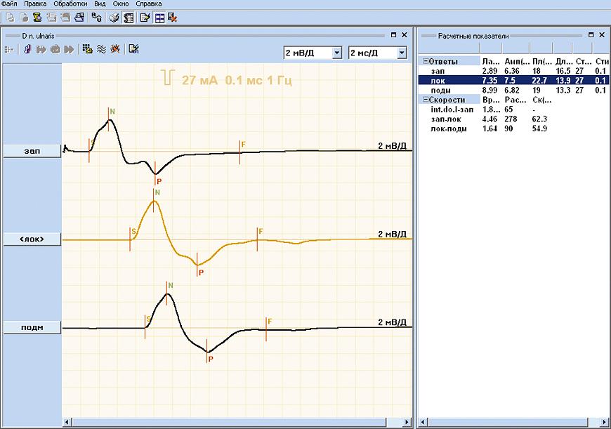 Motor conduction velocity