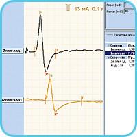 Sensory conduction velocity (SCV)