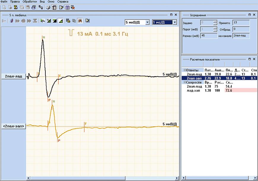 Sensory conduction velocity