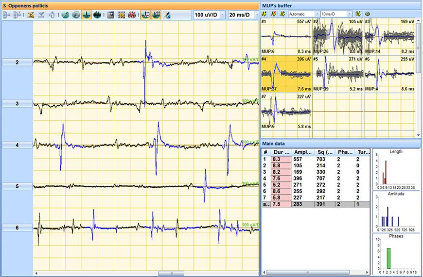 Needle EMG