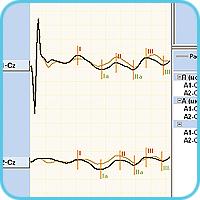 Коротколатентные слуховые ВП