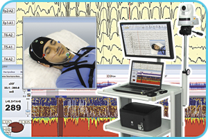 Videomonitoring kit for EEG-video