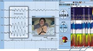 Пример мониторирования