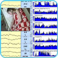 """Encephalan-NM"" Software for Neuromonitoring in ICU"