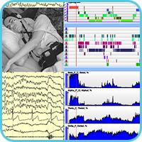 Analyses somnologiques « Encefalan-PSG »