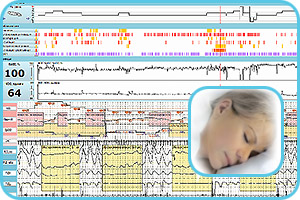 Software for sleep disorders analysis