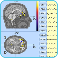 3d localization of epileptiform activity focus in the frontal area