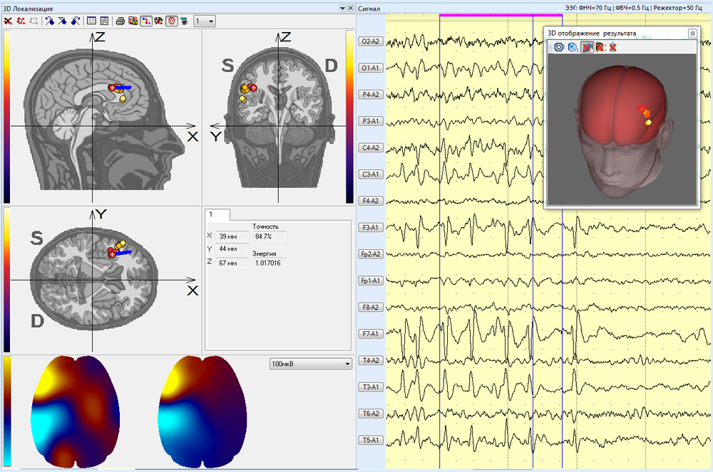 The results of three-dimensional localization of EEG fragments