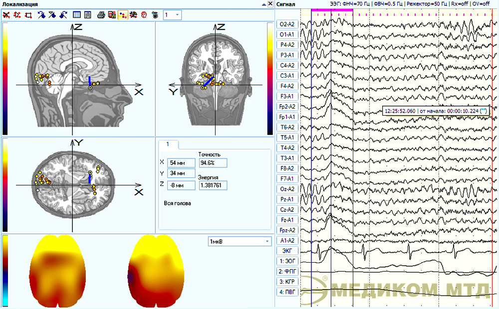 An example of EEG fragment localization with the electrooculgoram influence taken into account