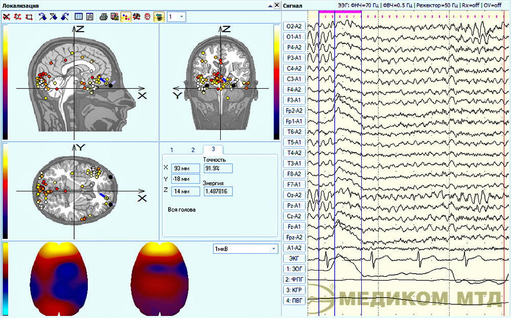 An example of EEG fragment localization without the electrooculgoram influence taken into account