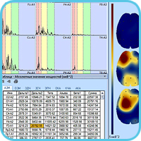 Спектральный анализ ЭЭГ-сигналов