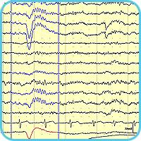 Исходная ЭЭГ с обнаруженными глазодвигательными артефактами