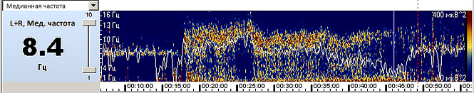 Пример сжатого спектра
