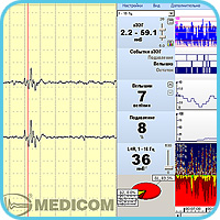 """Encephalan-CFM"" interface"