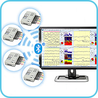 Simultaneous cerebral functions monitoring in 4 patients