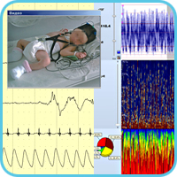 Example of cerebral function monitoring in the infant with hypoxic-ischemic encephalopathy