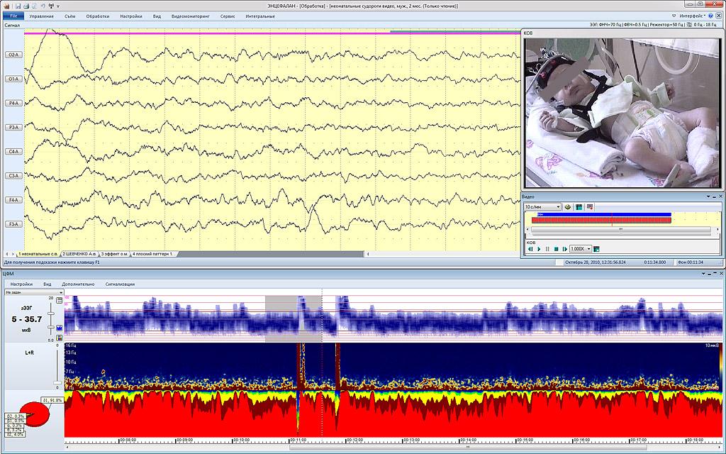 Синхронный мониторинг ЦФМ и ЭЭГ-видеомониторинг