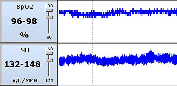 Динамика значений сатурации кислорода и частоты пульса