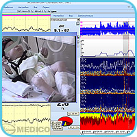 Synchronous cerebral functions and EEG videomonitoring