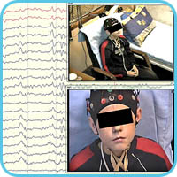 EEG monitoring and video from 2 cameras