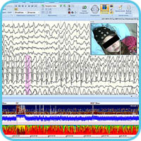Synchronized EEG monitoring, video image and density spectral array, aEEG and spectral power indices by range