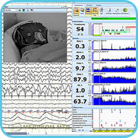 View of EEG-PSG-videomonitoring data, indices trends, sleep events and hypnogram built