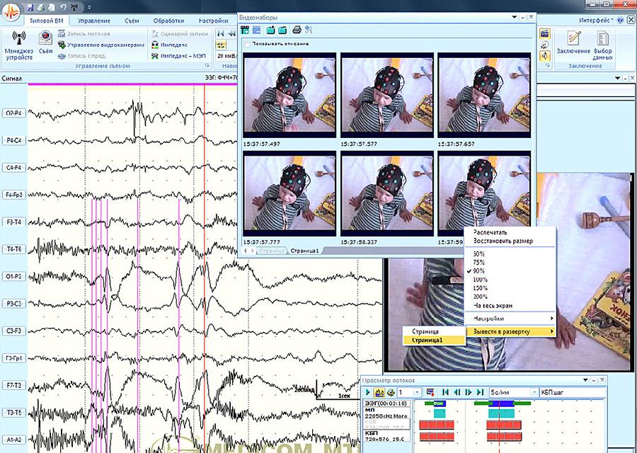 Video EEG | Epilepsy Foundation