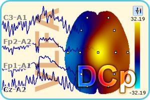 Анализ сверхмедленной активности мозга «Энцефалан-СМА»